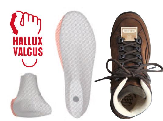 Hanwag-Hallux-Valgus